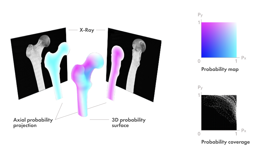 New machine learning algorithm elevates X-Ray imaging to the next level